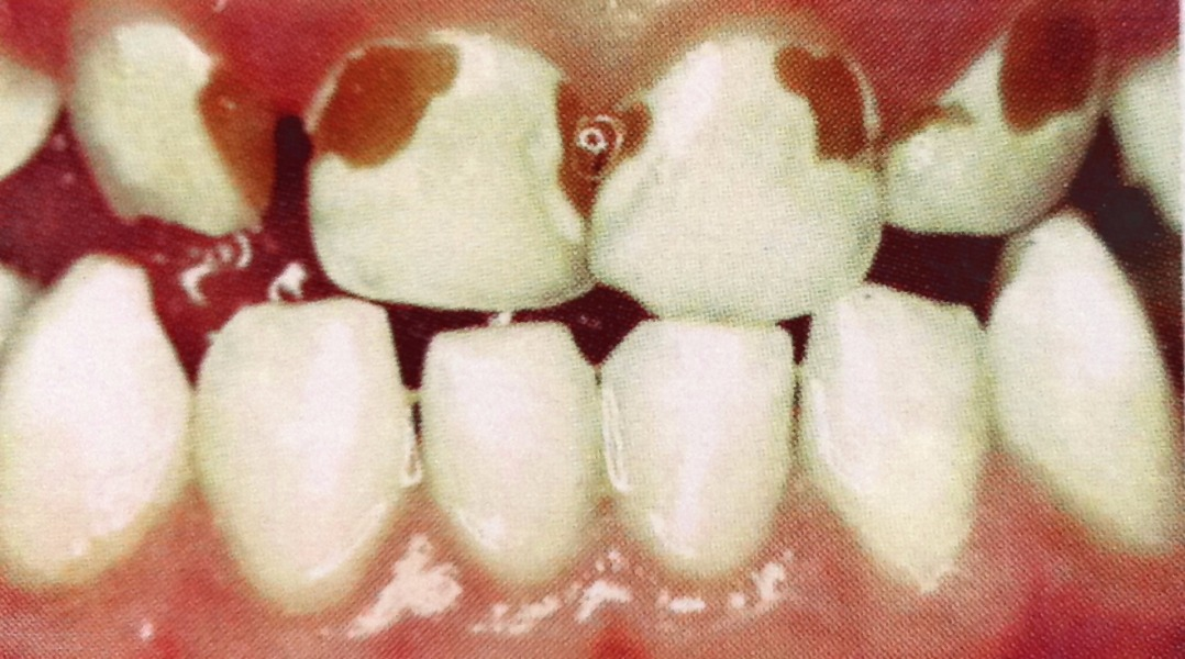 molar tooth decay - 1318×733